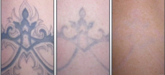 laser tattoo removal in Academy clinic Perth - image 002