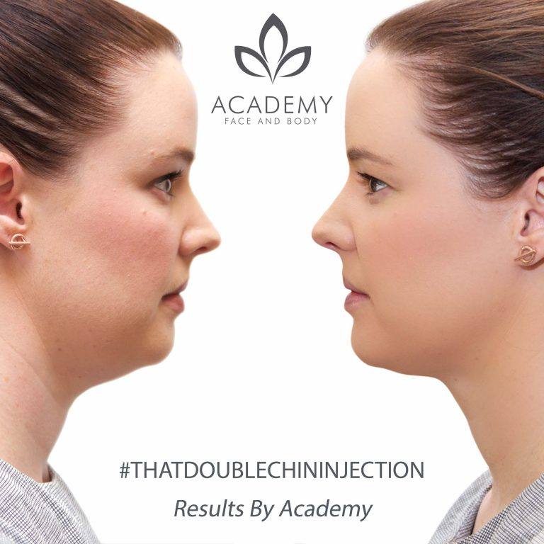 double chin removal - Academy Face & Body Perth