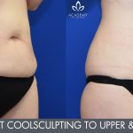 coolsculpting gallery - image 002 - before & afters - upper & lower abdomen