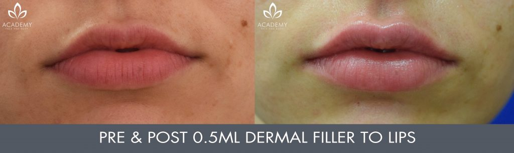 Dermal Fillers Perth | Academy Face & Body