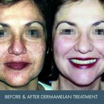 dermamelan before and after - image 001