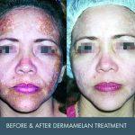 dermamelan before and after - image 002