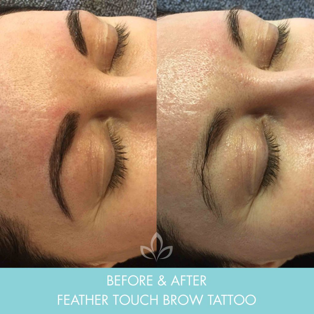 Feather Touch Brows Or Eyebrow Tattoo | Academy Face & Body