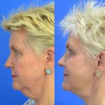 facelift before and after 010 - Academy Face & Body Perth