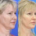 Facelift - Before and After 11 - Academy Face And Body - Perth