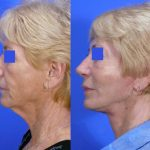 facelift before and after 012 - Academy Face & Body Perth