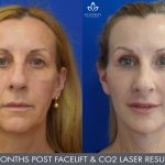 Facelift - Before and After - Academy Face And Body - Perth