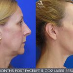 facelift and co2 laser resurfacing before and after image