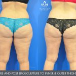liposuction - liposculpture - before and after image 003 - Academy Face & Body Perth
