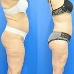 liposuction - liposculpture - before and after image 004 - Academy Face & Body Perth