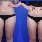 liposuction - liposculpture - before and after image 005 - Academy Face & Body Perth