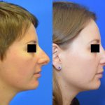 rhinoplasty - nose job - before and after image 01 - Academy Face & Body Perth