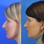 rhinoplasty - nose job - before and after image 10 - Academy Face & Body Perth