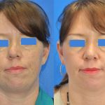 rhinoplasty - nose job - before and after image 11 - Academy Face & Body Perth