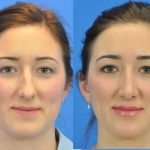 rhinoplasty - nose job - before and after image 12 - Academy Face & Body Perth