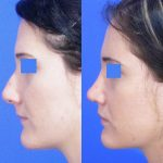 rhinoplasty - nose job - before and after image 13 - Academy Face & Body Perth