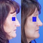 rhinoplasty - nose job - before and after image 14 - Academy Face & Body Perth