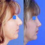 rhinoplasty - nose job - before and after image 15 - Academy Face & Body Perth
