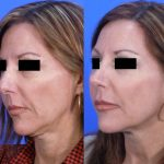 rhinoplasty - nose job - before and after image 16 - Academy Face & Body Perth