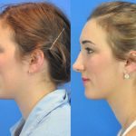 rhinoplasty - nose job - before and after image 02 - Academy Face & Body Perth