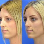 rhinoplasty - nose job - before and after image 20 - Academy Face & Body Perth