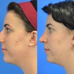 rhinoplasty - nose job - before and after image 22 - Academy Face & Body Perth