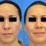 rhinoplasty - nose job - before and after image 23 - Academy Face & Body Perth