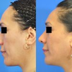 rhinoplasty - nose job - before and after image 24 - Academy Face & Body Perth