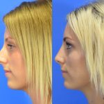 rhinoplasty - nose job - before and after image 25 - Academy Face & Body Perth