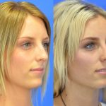 rhinoplasty - nose job - before and after image 26 - Academy Face & Body Perth