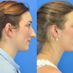 rhinoplasty - nose job - before and after image 03 - Academy Face & Body Perth