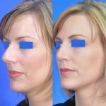 rhinoplasty - nose job - before and after image 06 - Academy Face & Body Perth
