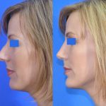 rhinoplasty - nose job - before and after image 07 - Academy Face & Body Perth