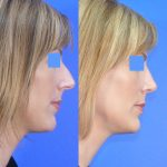 rhinoplasty - nose job - before and after image 08 - Academy Face & Body Perth