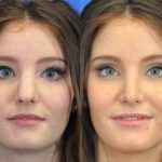 rhinoplasty - nose job - before and after image 09 - Academy Face & Body Perth