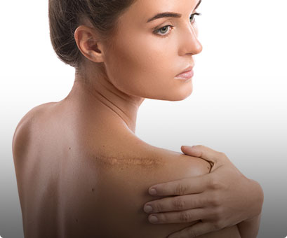 Venus VIVA treatment - Academy Face & Body Perth