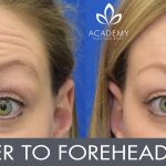 Anti-wrinkle injections (wrinkle relaxers) - before and after image 02 - Academy Face & Body Perth
