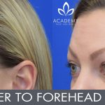 Anti-wrinkle injections (wrinkle relaxers) - before and after image 03 - Academy Face & Body Perth