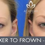 Anti-wrinkle injections (wrinkle relaxers) - before and after image 04 - Academy Face & Body Perth