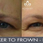 Anti-wrinkle injections (wrinkle relaxers) - before and after image 05 - Academy Face & Body Perth