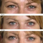 wrinkle injections - Academy Face & Body Perth