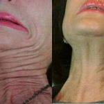 wrinkle relaxer before and after image 08