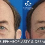 blepharoplasty and dermal fillers to cheeks - before and after image 001