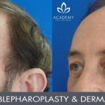 blepharoplasty and dermal fillers to cheeks 002