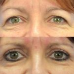 blepharoplasty - eyelid surgery - before and after image 003