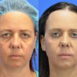 Blepharoplasty - eyelid surgery - before and after image 004