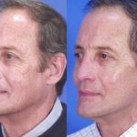 cheek augmentation - patient's before and after image 004 - Academy Face & Body Perth