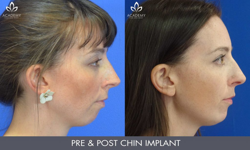 Chin Implants Perth | Academy Face & Body