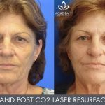 CO2 laser treatment - before and after image 002 - Academy Face & Body Perth