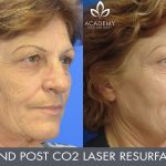 CO2 laser treatment - before and after image 001 - Academy Face & Body Perth